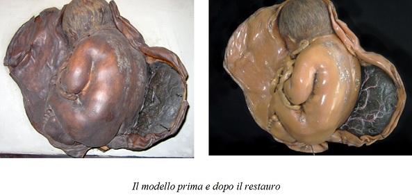 Il restauro della collezione Tumiati